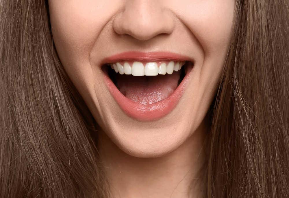 Los tratamientos de estética dental que están de moda en el 2020